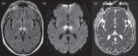 Lesson of the month 2: A rare presentation of stroke